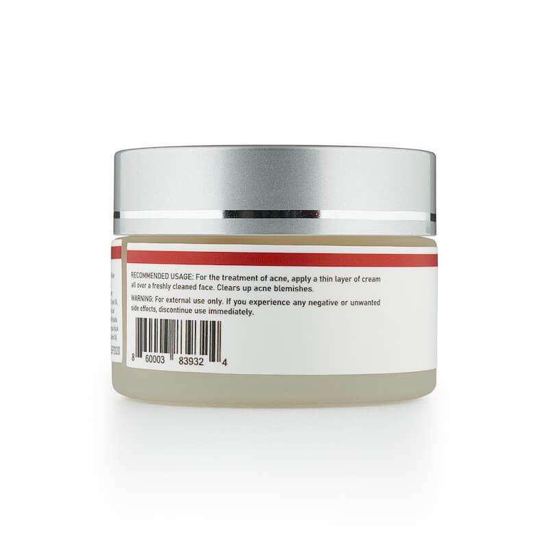 CBD acne cream for breakouts