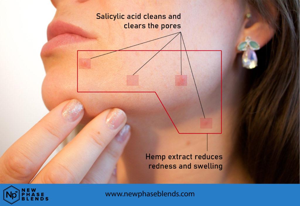 Hemp Oil for Acne Diagram