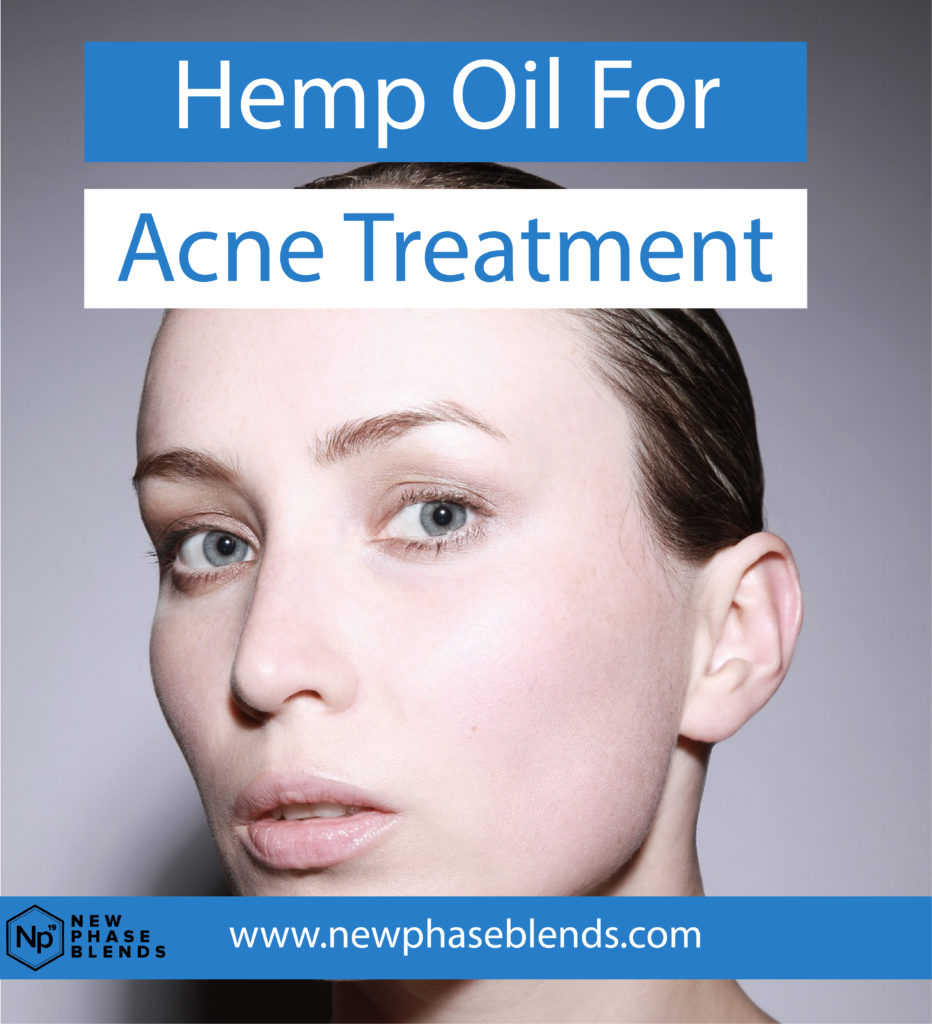 Hemp Oil for Acne Treatment Featured