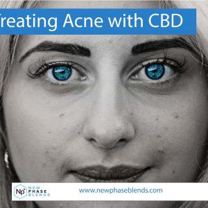 Treating Acne with CBD
