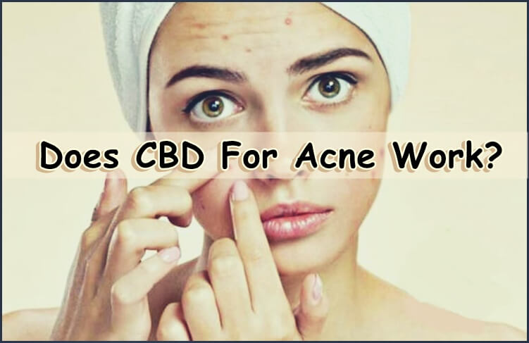 CBD and Acne