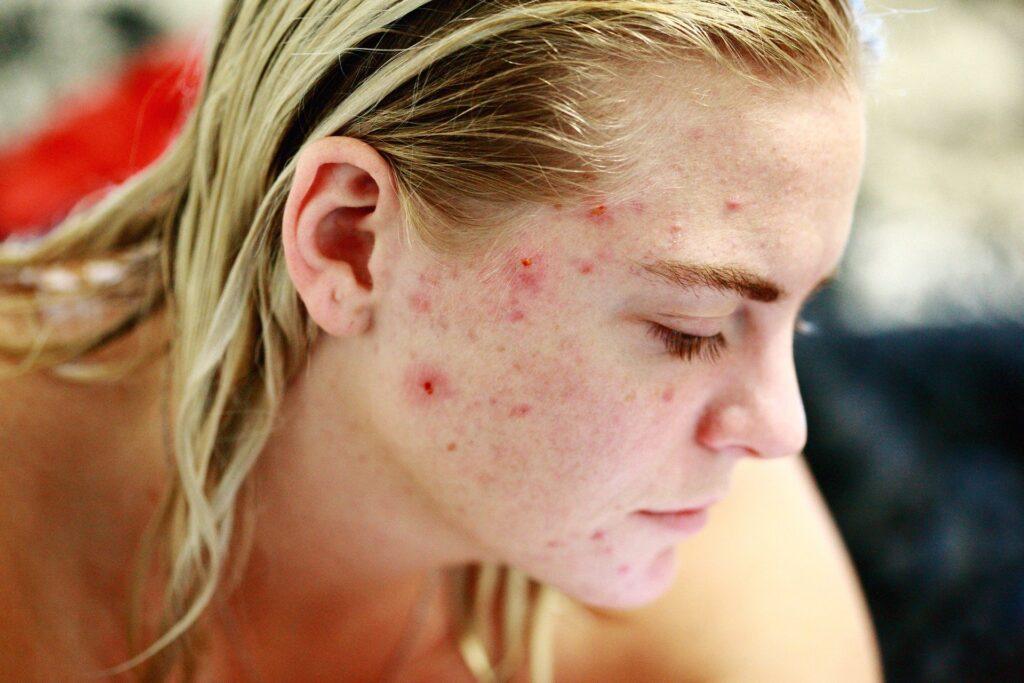 cbd for cystic acne